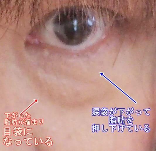 mebukuro 【検証済み】目袋をクリームで消す!効果の高いおすすめのクリームとは